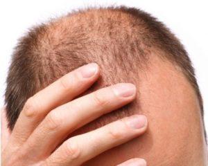 FollicleRX hair growth supplements - ingredients?